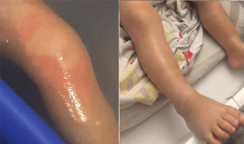 Turmeric health benefits for eczema: Left photo shows eczema rash taken in June of this year.  On the right is a recent photo of the much-improved skin after consuming food cooked with turmeric and black pepper on a regular basis.